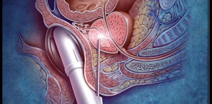 Βιοψία προστάτη