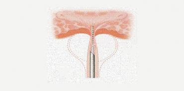 Διουρηθρική αυχενοτομή (bladder neck incision, BNI)