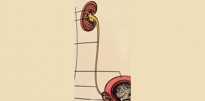 Νεφροουρητηρεκτομή
